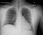 COVID-19 X-ray: Patient 2